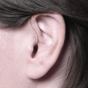 Ace Ear Picture 01