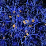 Microglia Gene Activation