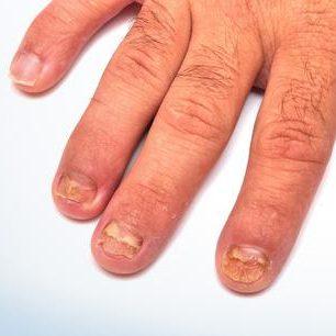 manos-onicomicosis
